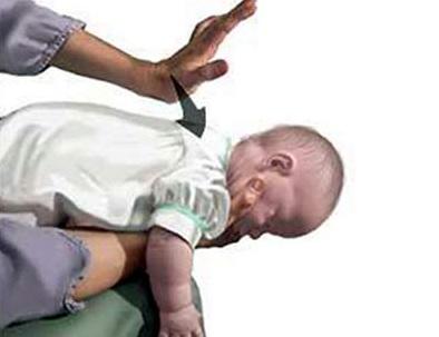 Cách sơ cứu khi trẻ bị hóc dị vật tại nhà, cach so cuu khi tre bi hoc di vat tai nha